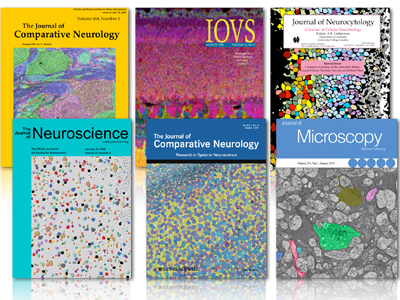 journal cover articles featuring Signature Immunologics antibodies products: alanine, agamatine (AGB), glutamate, glutathione, glycine, glutamine, GABA, taurine, aspartate